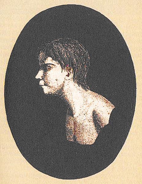 Premier portrait de Victor, décrit comme ayant 26 cicatrices tant au corps qu'à la tête.